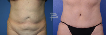 Front: 56 year old- abdominoplasty with liposuction to abdomen and flanks