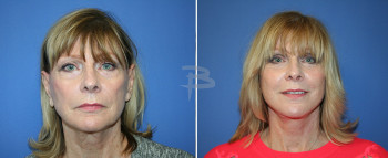 Front - 70 year old-Face and neck lift, upper and lower eyelids, upper lip fascial lip graft, fat transfer