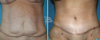 Front :- 52 year old- extended abdominoplasty