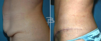 Side :- 52 year old- extended abdominoplasty