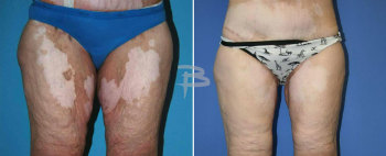 Front :- 51 year old –medial thighlift