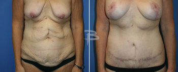 Front :- 45 year old-extended abdominoplasty and breast augmentation with lollipop mastopexy
