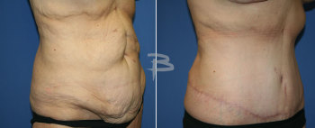 Side :- 45 year old-extended abdominoplasty and breast augmentation with lollipop mastopexy