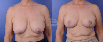Front : 62 year old-bialteral circumvertical mastopexy without implants.