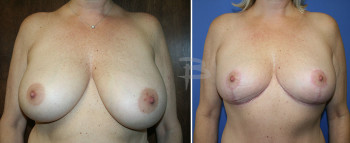 breast-reduction3