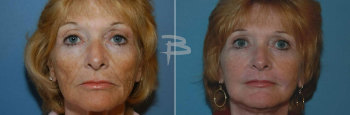 Front :- 55 year old face and neck lift, upper eyelids and fat transfer