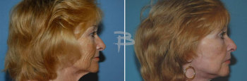 Side :- 55 year old face and neck lift, upper eyelids and fat transfer
