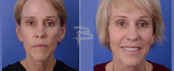 Front: 62 year old-Face and neck lift with fat transfer to cheeks