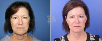 Front: 61 year old-Face and neck lift and fat transfer