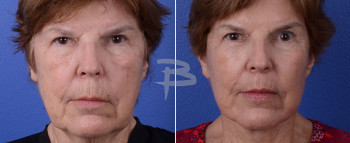 Front : 75 year old- Face and neck lift, fat transfer to cheeks and earlobes, upper lip lift with upper lip fascial graft