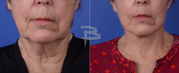 Front Zoom : 75 year old- Face and neck lift, fat transfer to cheeks and earlobes, upper lip lift with upper lip fascial graft