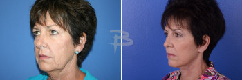 Side – 62 year old- 5 weeks after Face and Neck, upper eyelids and fat transfer