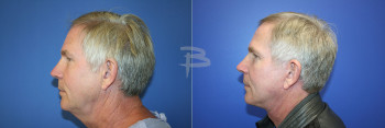 Side: 62 year old- Face and neck lift anf fat transfer