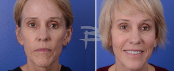62 year old- fat grafting to cheeks, temporal area and upper eyelids