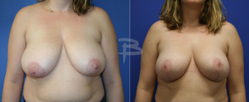 fem-breast-reduction