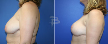 fem-breast-reduction2
