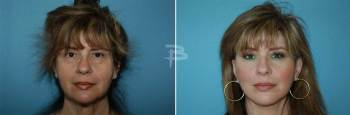 Front :- 52 year old- face and neck lift, upper eyelids and fat transfer
