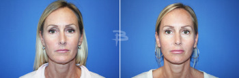 Front :- 48 year old-Face and Neck lift with fat transfer and upper and lower fascial lip grafts