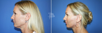 Side :-  48 year old-Face and Neck lift with fat transfer and upper and lower fascial lip grafts