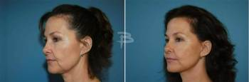 Side :- 49 year old-face and neck lift and fat transfer