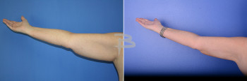 Liposuction to upper arms