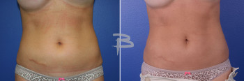 Front: 44 year old-liposuction to abdomen and flanks