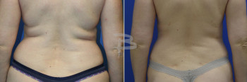 44 year old- Liposuction to back