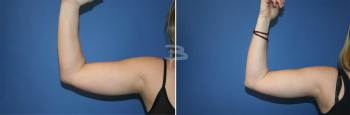 Front :- Liposuction to arms