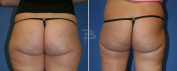 Back :- Liposuction to inner and outer thighs