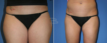 Front :- Liposuction to inner and outer thighs