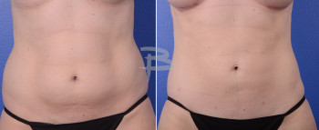 Front: 34 year old-liposuction to abdomen and flanks