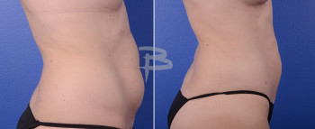 Side: 34 year old-liposuction to abdomen and flanks