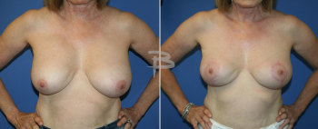 Front :- 68 year old- bilateral implant removal with circumvertical (lollipop)mastopexy