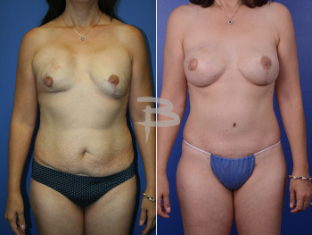 45 year old- Bilateral mastectomy with implant reconstruction and abdominoplasty
