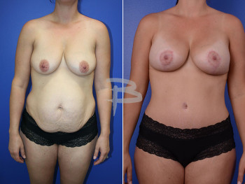 34 year old- abdominoplasty with liposuction to abdomen and flanks and breast augmentation with lollipop mastopexy