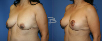 Side :- 37 year old-extended breast augmentation with lollipop mastopexy