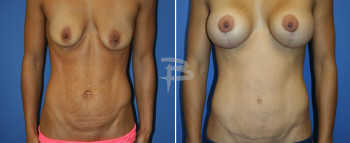 31 year old-Abdominoplasty and breast augmentation with lollipop mastopexy