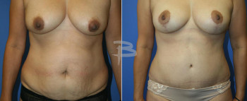 37 year old-extended abdominoplasty with breast augmentation and lollipop mastopexy