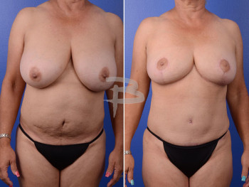 Front: 59 years old and 5 months after breast reduction and abdominoplasty with liposuction to abdomen and flanks.
