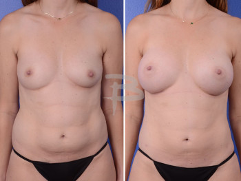Front: 34 year old-Bilateral breast augmentation and liposuction to abdomen and flanks