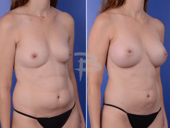 Side: 34 year old-Bilateral breast augmentation and liposuction to abdomen and flanks