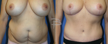 50 year old-Extended Abdominoplasty and Breast Reduction