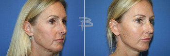Oblique :- 48 year old-Face and Neck lift with fat transfer and upper and lower fascial lip grafts