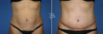 Front :- 46 year old-full abdominoplasty with liposuction of the flanks
