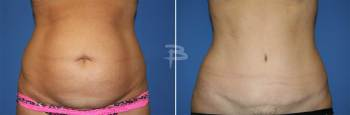 Front :- 41 year old-full abdominoplasty
