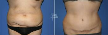 Front :- 42 year old-extended abdominoplasty with liposuction of the flanks""