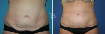 Front :- 44 year old- full abdominoplasy with liposuction of the flanks and upper abdomen