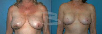 Latissimus dorsi flap reconstruction right breast and left breast reduction