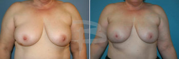 TRAM flap reconstruction right breast following nipple sparing mastectomy