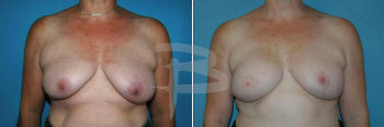 Latissimus dorsi flap reconstruction right breast following mastectomy""